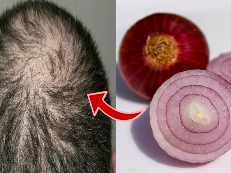 Comment utiliser l'oignon sur les cheveux ?